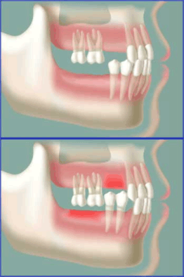 Dental Cone Beam Scanner